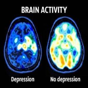 depression-assessment-Brain